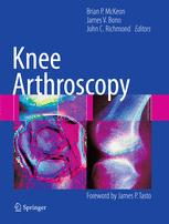 Knee Arthroscopy - Brian McKeon; James V. Bono; John C. Richmond